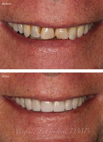 Before and after porcelain veneers.
