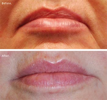 Filler for correction of frown lines and a slight upper-lip augmentation.