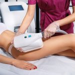 CoolSculpting in Mount Pleasant, Why So Cool?